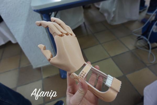 protesis impresora 3d