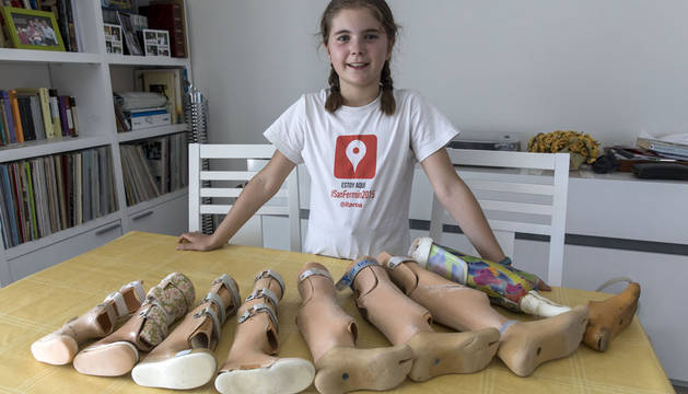 Vivir la infancia con prótesis